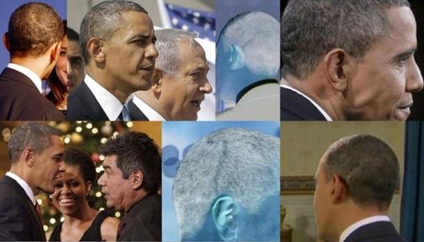 Obama Head Scars